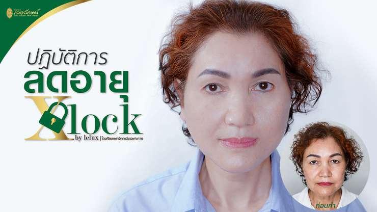 รับสมัครผู้เข้าร่วมโครงการ ปฏิบัติการลดอายุ X-Lock By Lelux (5 ท่าน)