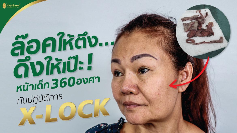 ดึงหน้า X Lock